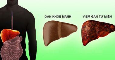Hỏi đáp: Bệnh viêm gan có lây qua đường ăn uống không?