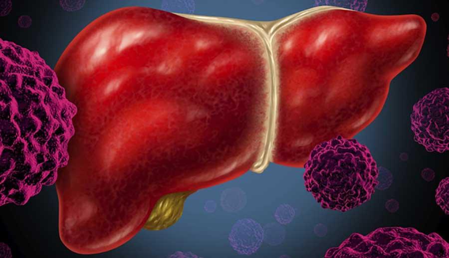 7 yếu tố nguy cơ Ung thư Gan, nên biết để đề phòng!