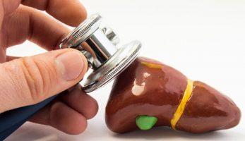Men gan cao là gì, triệu chứng và nguyên nhân, điều trị ra sao?